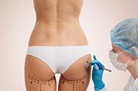LIPOENXERTIA - Cirurgia Plástica